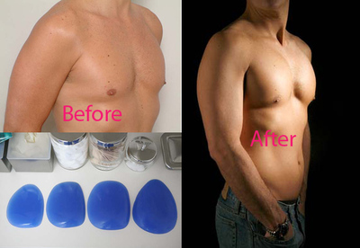 Pec_implants_2